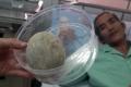 세상에 이런일이? 61세 남성 방광에서 계란 크기의 결석 제거 수술