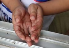 호찌민시, 어린이 수족구병 급격히 증가.., 예방 활동 강화 필요