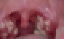 베트남, 노래방 · 마사지점에서 유사 성행위로 성병 감염 주의